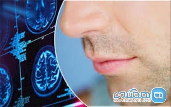 حس بویایی در بیماران کرونایی چندمین روز از بین می رود؟