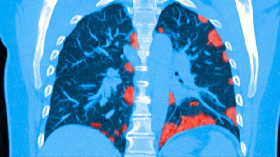 حتی بیماران بی علامت کرونا هم ممکن است دچار التهاب ریوی و قلبی باشند
